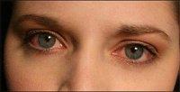 چشمهای سوزان و دلایل آن